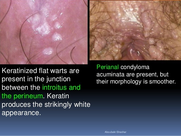 a report on genital warts or condylomata acuminata Other articles where genital wart is discussed: genital warts, or condylomata acuminata, are wartlike growths in the pubic area that are accompanied by itching and discharge.