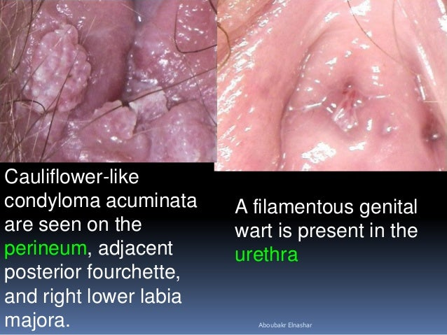 Gential warts inside vagina
