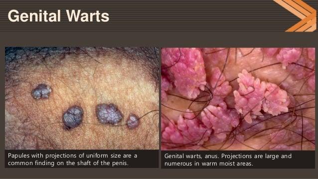 Wart on shaft genital Genital warts