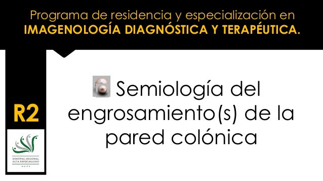 Programa de residencia y especialización en IMAGENOLOGÍA DIAGNÓSTICA Y TERAPÉUTICA. R2 Semiología del engrosamiento(s) de ...