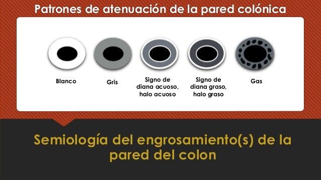 Patrones de atenuación de la pared colónica Semiología del engrosamiento(s) de la pared del colon Blanco Gris Signo de dia...