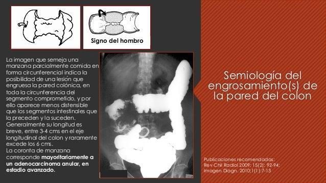 Semiología del engrosamiento(s) de la pared del colon Signo del hombro La imagen que semeja una manzana parcialmente comid...