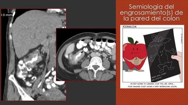 Semiología del engrosamiento(s) de la pared del colon