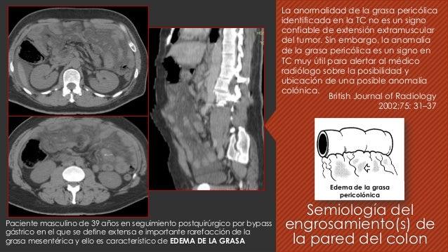 La anormalidad de la grasa pericólica identificada en la TC no es un signo confiable de extensión extramuscular del tumor....