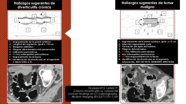 Gryspeerdt S, Lefere P. Chronic diverticulitis vs. colorectal cancer: findings on CT colonography. Abdom Imaging 2012;37:1...