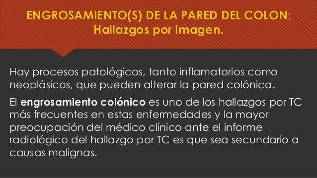 Hay procesos patológicos, tanto inflamatorios como neoplásicos, que pueden alterar la pared colónica. El engrosamiento col...