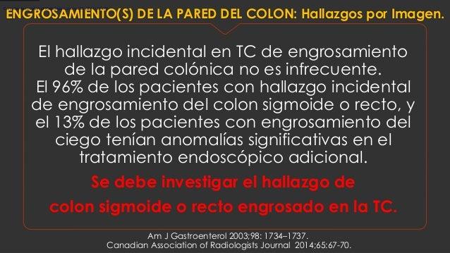 El hallazgo incidental en TC de engrosamiento de la pared colónica no es infrecuente. El 96% de los pacientes con hallazgo...