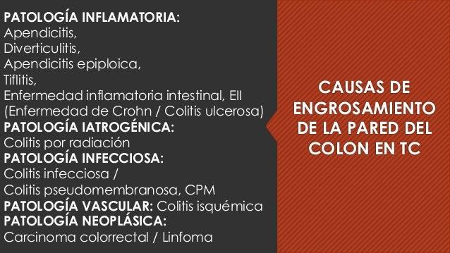 CAUSAS DE ENGROSAMIENTO DE LA PARED DEL COLON EN TC PATOLOGÍA INFLAMATORIA: Apendicitis, Diverticulitis, Apendicitis epipl...