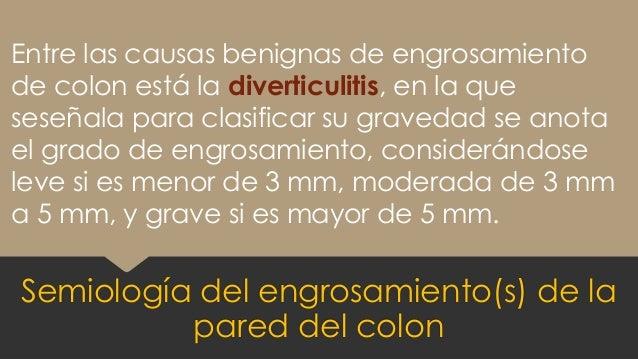 Entre las causas benignas de engrosamiento de colon está la diverticulitis, en la que seseñala para clasificar su gravedad...