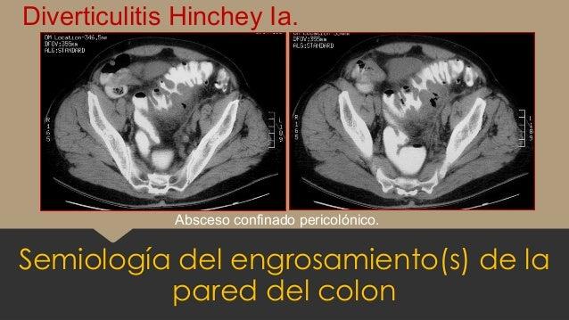 Semiología del engrosamiento(s) de la pared del colon Diverticulitis Hinchey Ia. Absceso confinado pericolónico.
