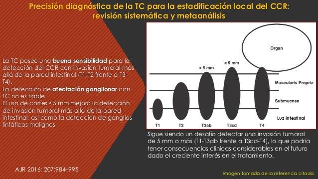La TC posee una buena sensibilidad para la detección del CCR con invasión tumoral más allá de la pared intestinal (T1-T2 f...