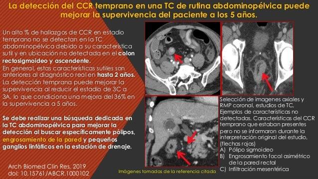 Un alto % de hallazgos de CCR en estadio temprano no se detectan en la TC abdominopélvica debido a su característica sutil...