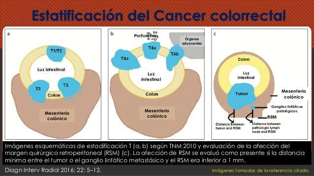 Estatificación del Cancer colorrectal Imágenes esquemáticas de estadificación T (a, b) según TNM 2010 y evaluación de la a...