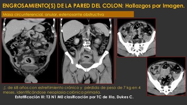 ENGROSAMIENTO(S) DE LA PARED DEL COLON: Hallazgos por Imagen. ♂, de 68 años con estreñimiento crónico y pérdida de peso de...