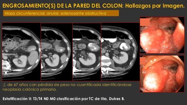 ENGROSAMIENTO(S) DE LA PARED DEL COLON: Hallazgos por Imagen. ♂, de 67 años con pérdida de peso no cuantificada identificá...