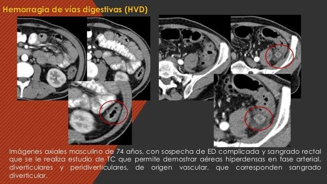 Hemorragia de vías digestivas (HVD) Imágenes axiales masculino de 74 años, con sospecha de ED complicada y sangrado rectal...