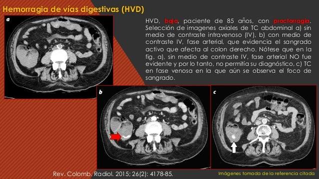 HVD, baja, paciente de 85 años, con proctorragia. Selección de imagenes axiales de TC abdominal a) sin medio de contraste...