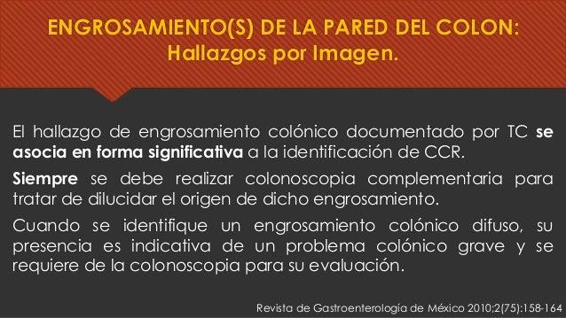 El hallazgo de engrosamiento colónico documentado por TC se asocia en forma significativa a la identificación de CCR. Siem...