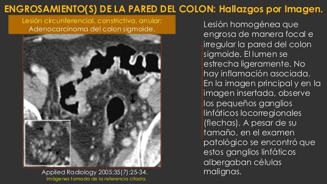 ENGROSAMIENTO(S) DE LA PARED DEL COLON: Hallazgos por Imagen. Lesión homogénea que engrosa de manera focal e irregular la ...