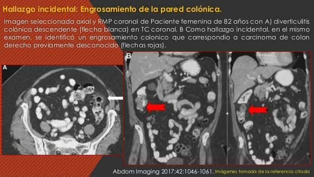 Imagen seleccionada axial y RMP coronal de Paciente femenina de 82 años con A) diverticulitis colónica descendente (flecha...
