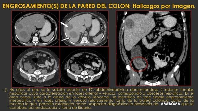 ENGROSAMIENTO(S) DE LA PARED DEL COLON: Hallazgos por Imagen. ♂, 46 años al que se le solicito estudio de TC abdominopélvi...