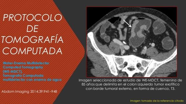 Abdom Imaging 2014;39:941–948 Imagen seleccionada de estudio de WE-MDCT, femenina de 85 años que delimita en el colon izqu...