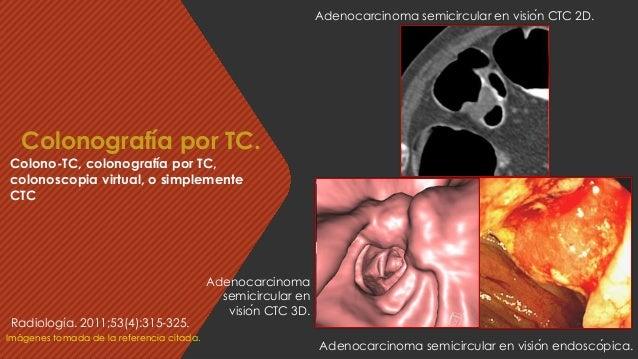 Adenocarcinoma semicircular en visión CTC 2D. Imágenes tomada de la referencia citada. Colonografía por TC. Colono-TC, co...