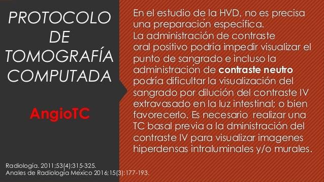 En el estudio de la HVD, no es precisa una preparación específica. La administración de contraste oral positivo podría im...