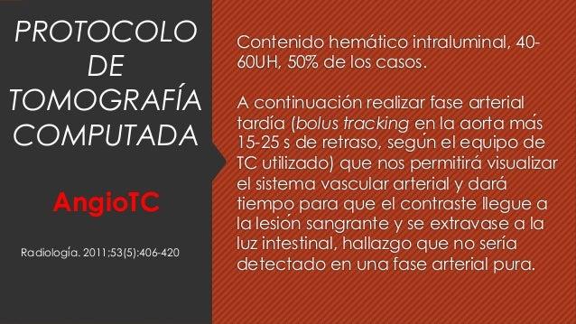 Contenido hemático intraluminal, 40- 60UH, 50% de los casos. A continuación realizar fase arterial tardía (bolus tracking ...