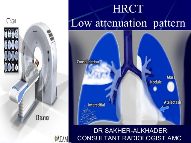 HRCT Low attenuation pattern DR SAKHER-ALKHADERI CONSULTANT RADIOLOGIST AMC