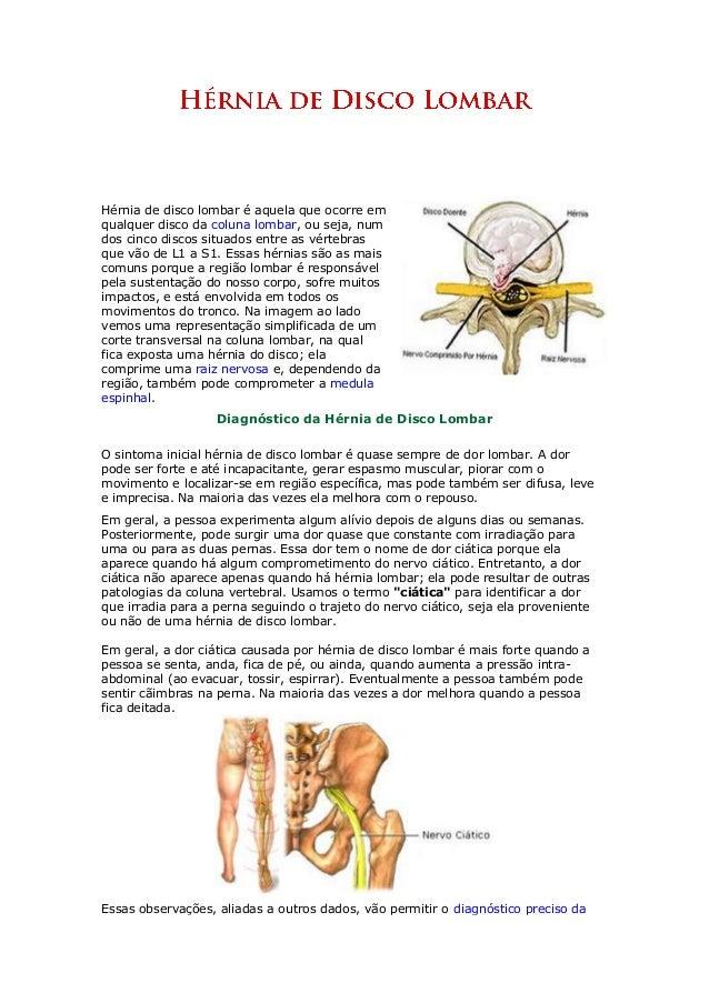 Hérnia de disco lombar é aquela que ocorre em qualquer disco da coluna lombar, ou seja, num dos cinco discos situados entr...