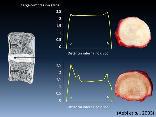 Troque as dores da hérnia de disco por uma postura correta e