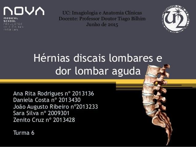Hérnias discais lombares e dor lombar aguda Ana Rita Rodrigues nº 2013136 Daniela Costa nº 2013430 João Augusto Ribeiro nº...