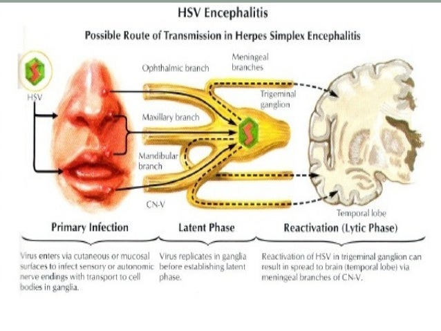 Hsv encephalitis final