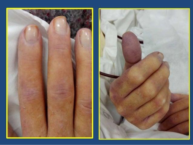 anemia hemolítica microangiopática Eclampsia Sepsis HTA maligna PTT CID Crisis renal esclerodérmica SAF