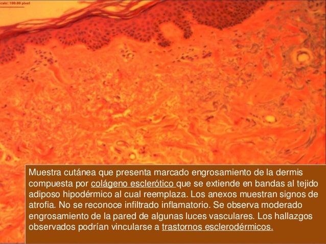 Evolución: Nuestra paciente evoluciona estable clínicamente, quedando en diálisis trisemanal. Presentó nuevas internacione...