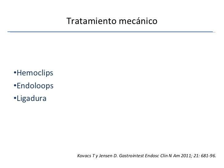 Tratamiento mecánico <ul><li>Hemoclips </li></ul><ul><li>Endoloops </li></ul><ul><li>Ligadura </li></ul>Kovacs T y Jensen ...