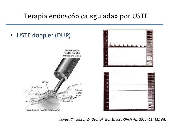 Terapia endoscópica «guiada» por USTE <ul><li>USTE doppler (DUP) </li></ul>Kovacs T y Jensen D. Gastrointest Endosc Clin N...