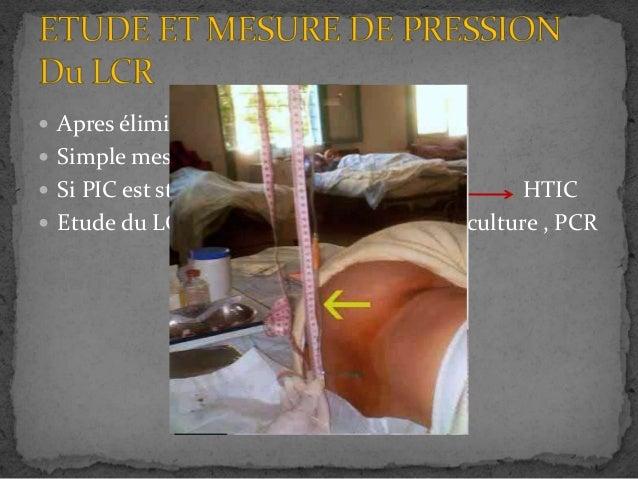 HTIC - Hypertension intracrânienne