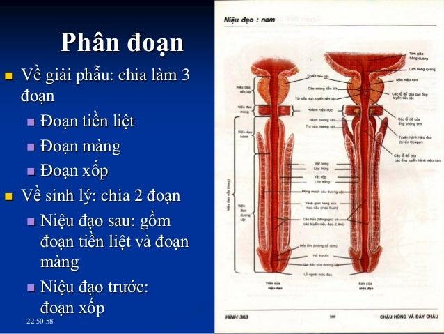 LỒI TINH -Lỗ Ống phóng tinh - Lổ túi bầu dục HÒANH NIỆU DỤC Tuyến hành niệu đạo HỐ THUYỀN NIỆU ĐẠO NAM