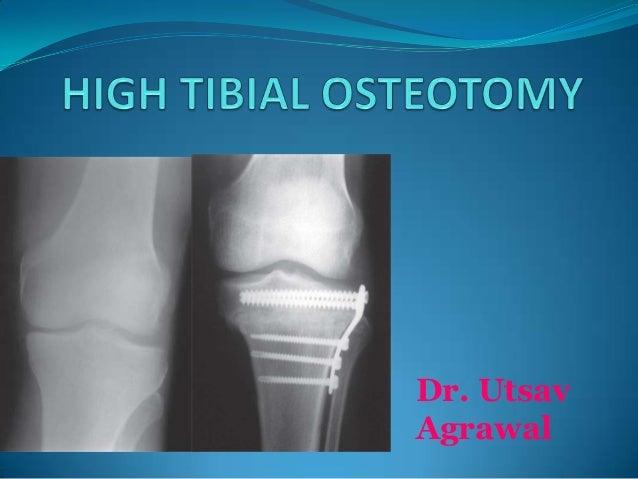 High Tibial Osteotomy_UTSAV