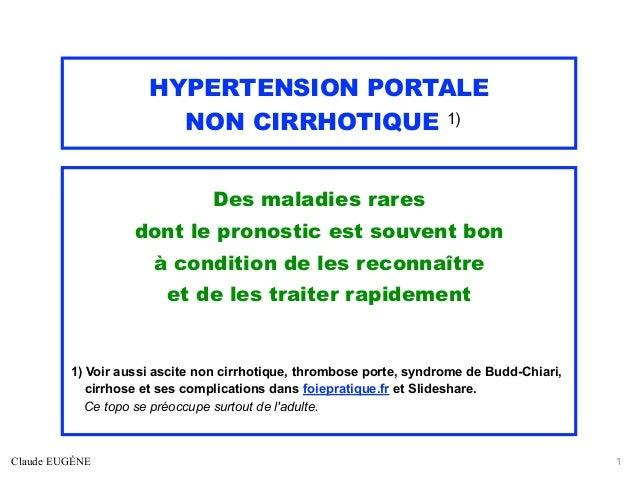 HYPERTENSION PORTALE NON CIRRHOTIQUE 1) Des maladies rares dont le pronostic est souvent bon à condition de les reconnaîtr...