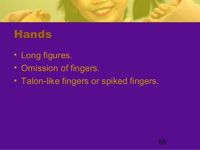 88Hands• Long figures.• Omission of fingers.• Talon-like fingers or spiked fingers.