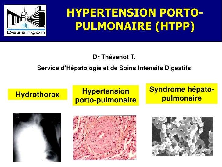 HYPERTENSION PORTO-                PULMONAIRE (HTPP)                        Dr Thévenot T.     Service d'Hépatologie et de...