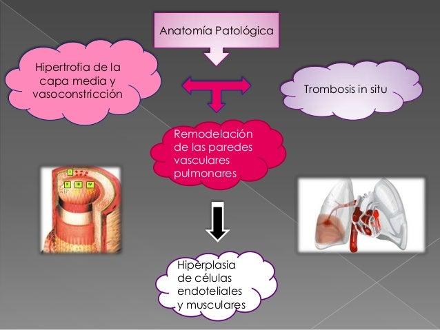 Remedios Caseros Para La Presión Arterial Alta