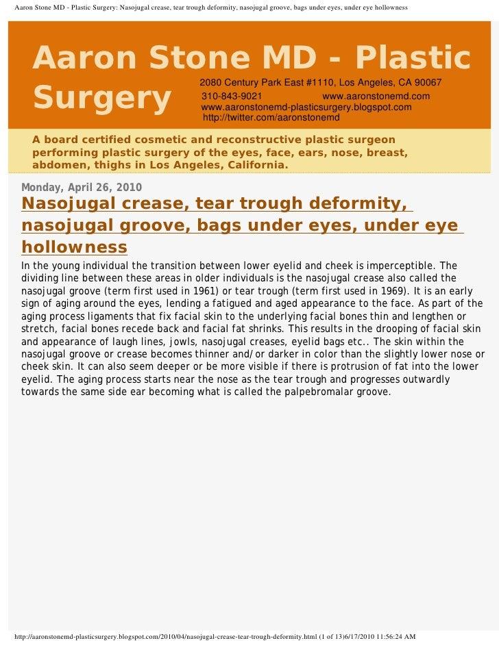 Aaron Stone MD - Plastic Surgery: Nasojugal crease, tear trough deformity, nasojugal groove, bags under eyes, under eye ho...