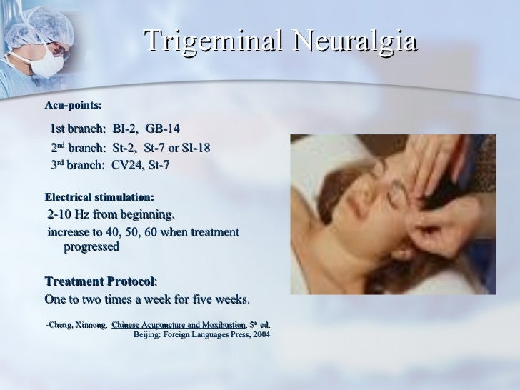 Trigeminal Neuralgia <ul><li>Acu-points:  </li></ul><ul><li>1st branch:  BI-2,  GB-14 </li></ul><ul><li>2 nd  branch:  St-...