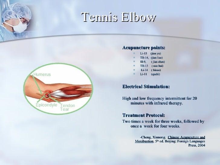 Tennis Elbow <ul><li>Acupuncture points:   </li></ul><ul><ul><li>Li-15  (jian yu)  </li></ul></ul><ul><ul><li>TB-14,  (jia...