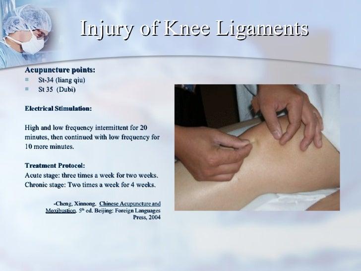 Injury of Knee Ligaments <ul><li>Acupuncture points:  </li></ul><ul><li>St-34 (liang qiu) </li></ul><ul><li>St 35  (Dubi) ...