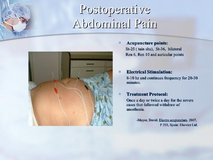 Postoperative Abdominal Pain <ul><li>Acupuncture points: </li></ul><ul><li>St-25 ( tain shu),  St-36,  bilateral </li></ul...